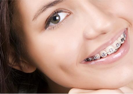 Küçükçekmece ortodonti uzmanı