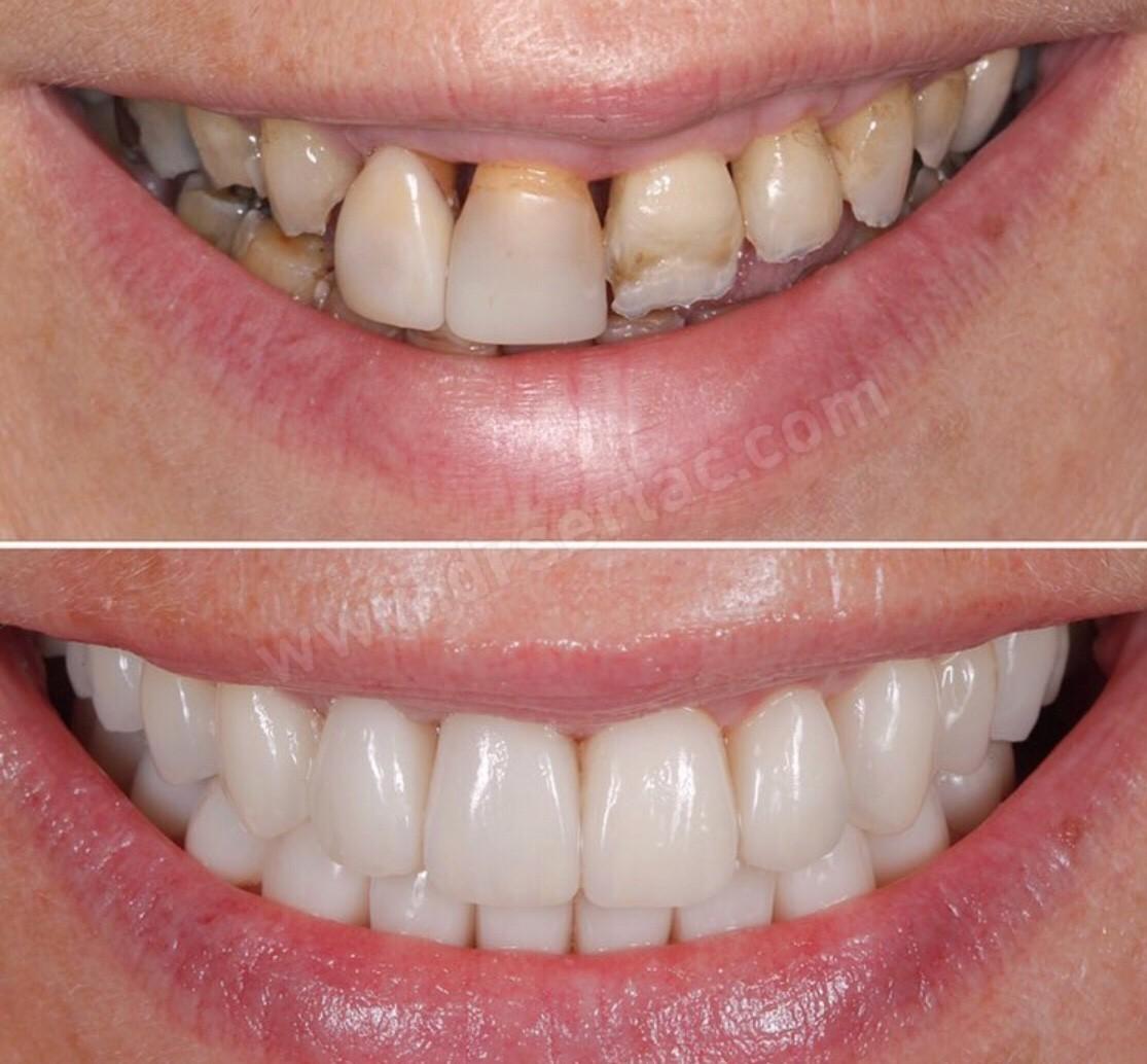 Diş estetiği İstanbul